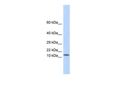 LGALS1 antibody