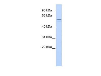 TUB antibody