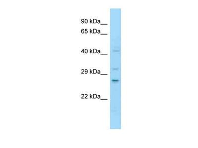 NOTCH2NL antibody