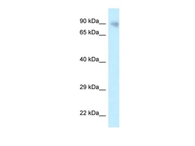 PPP6R3 antibody