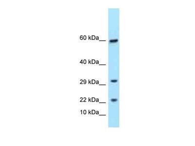 TRGC1 antibody