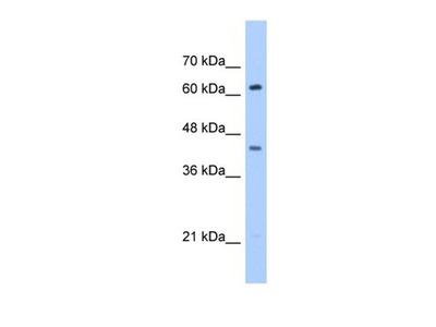 ZSCAN5D antibody