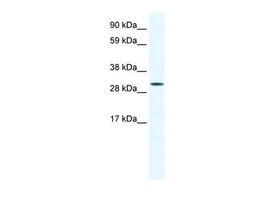 SOX12 antibody
