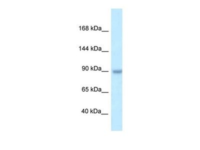 TBC1D2B antibody