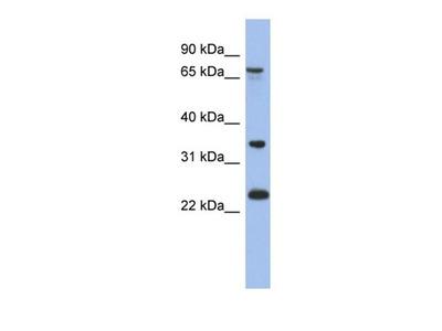 TBC1D25 antibody