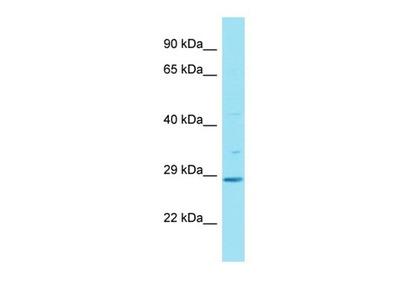 HAUS2 antibody
