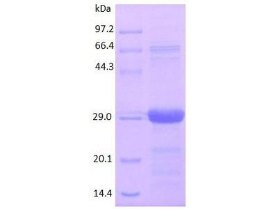 Human RANTES protein