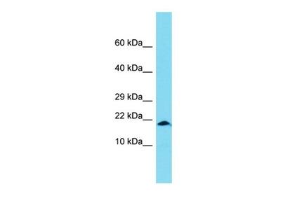 XAGE1B antibody