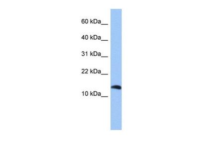 PTH2 antibody