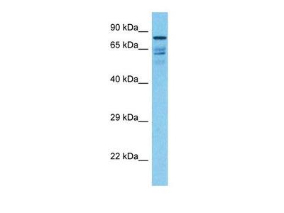 ECHP antibody