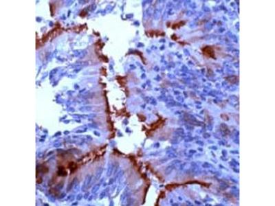 anti alpha Tubulin / TUBA1B (426-450)