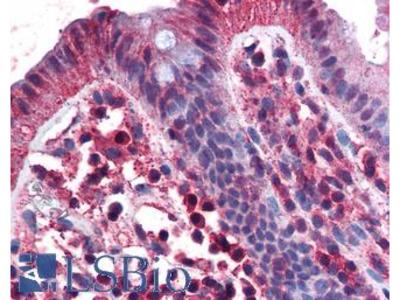 TNFRSF17 / BCMA Antibody