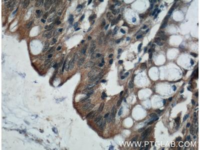 ADHFE1 antibody