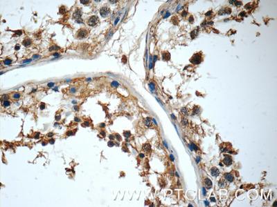 MRPL36 Antibody