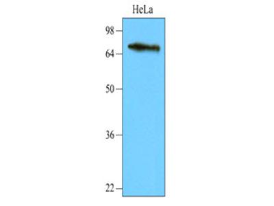 NSD3 / WHSC1L1 Monoclonal Antibody