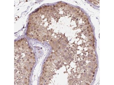 NUDT11 Antibody