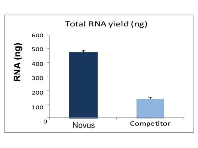 overall exosome capture and rna extraction biofluids cell media kit