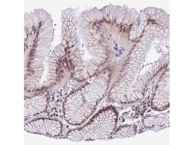 CTB-133G6.1 Antibody