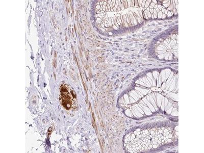 CCL25/TECK Antibody