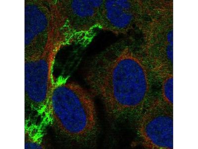 Nicotinic Acetylcholine R alpha 5/CHRNA5 Antibody