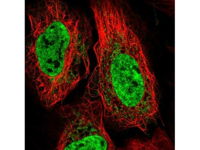 TNNC2 Antibody