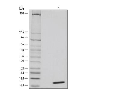 CCL20 / MIP-3 alpha Protein