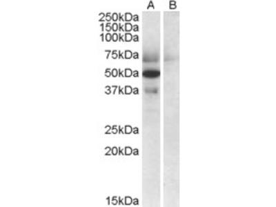 Apolipoprotein L4 Antibody 46-807 from ProSci, Inc