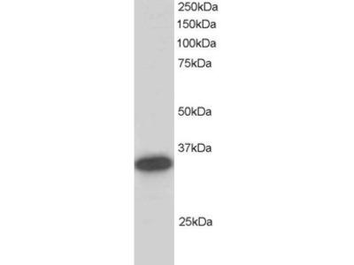 CBR1 Antibody