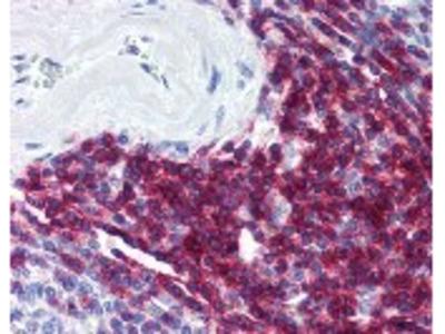 CD5 Antibody [MEM-32]