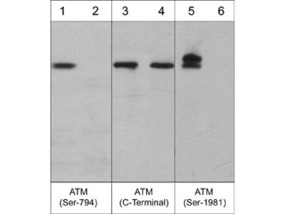 ATM Phospho-Regulation Antibody Sampler Kit