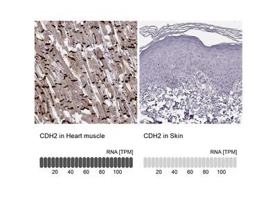 Anti-CDH2 Antibody