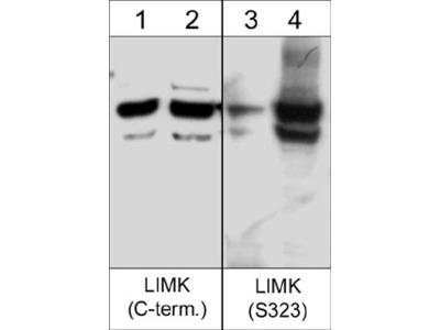 LIMK Phospho-Regulation Antibody Sampler Kit
