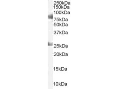 CDYL Antibody