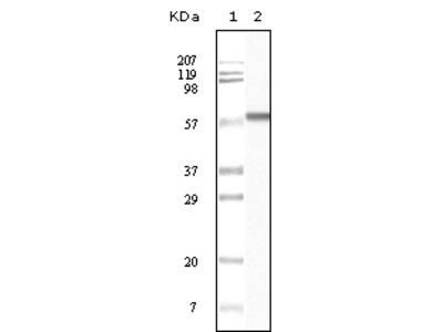 CK1 Antibody [3C10F7 / 3C10G5 / PMC01 / 4D12B3]