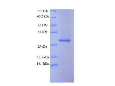 SAMHD1 Protein