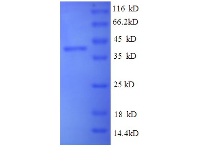 SEPP1 / Selenoprotein P Protein