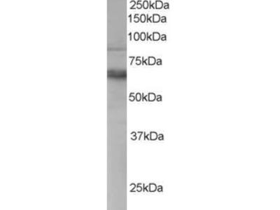 Anthrax Toxin Receptor 1 Antibody
