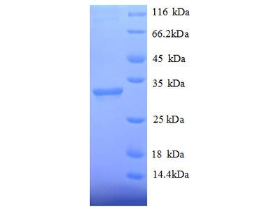HDAC7 Protein