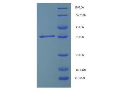 SMUG1 Protein