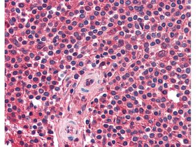 CXCR5 Antibody