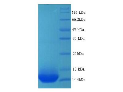 ADRB1 Protein
