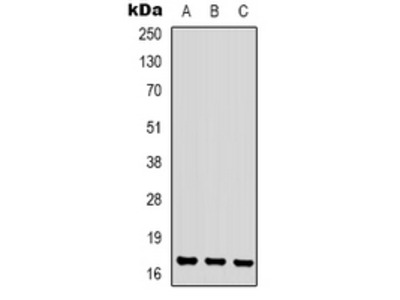 CKLF Polyclonal Antibody