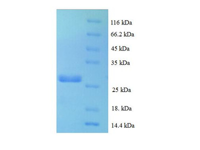 CCL16 / LEC Protein
