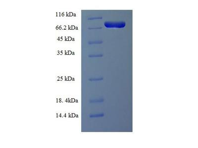 LCP1 / L-Plastin Protein