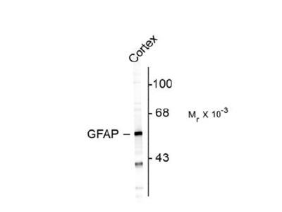 Glial Fibrillary Acidic Protein Antibody