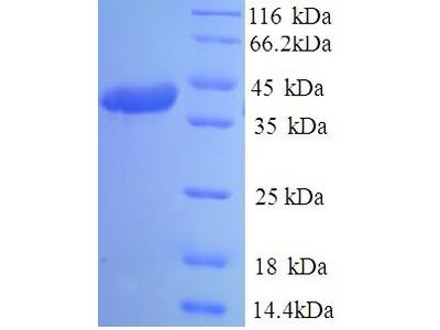 Spike Glycoprotein Protein