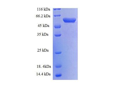 YWHAH / 14-3-3 Eta Protein