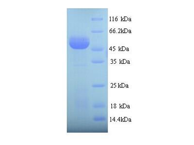 SUOX / Sulfite Oxidase Protein