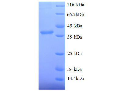 SRP14 Protein