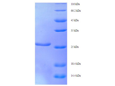 XRCC5 / Ku80 Protein